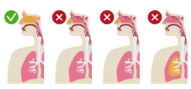 Nebulizador nasal Nasoneb: comparativa