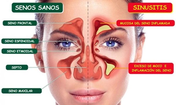 sinusitis y rinitis